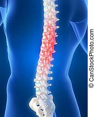 backache illustration - 3d rendered illustration of a male...