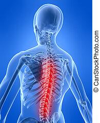 backache, ilustração