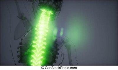 Backache in Back Bones - backache in backbone. science...