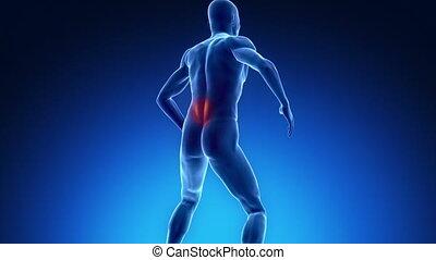 Backache in x-ray view