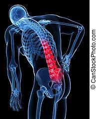 backache, mandlig