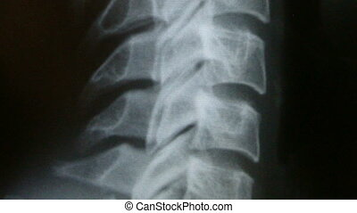 Background of X-Ray