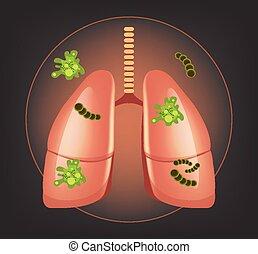 bactérie, poumons, germes