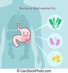 bacteriano, Estómago,  gastroenteritis