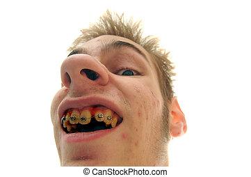 Bad Breath Oral Hygiene
