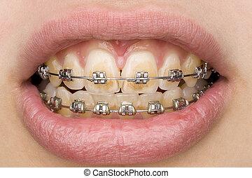 bad oral hygiene
