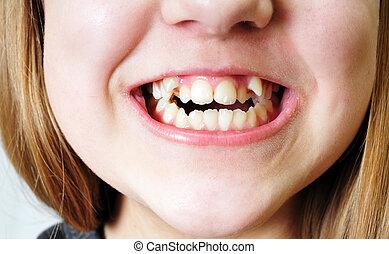 bad teeth - close up - bad  crooked teeth of girl