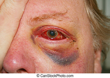 damaged eye - badly injured damaged eye