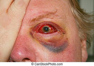 badly injured damaged eye