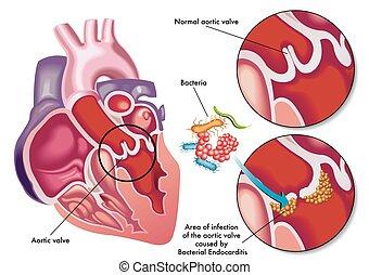 bakterie-, endocarditis