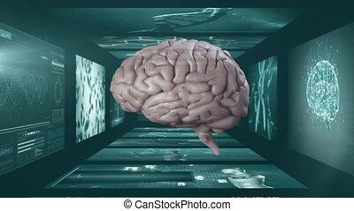 balayages, humain, rotation, écrans, sur, médian, animation, cerveau