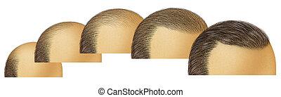 Bald Head Hair Growth - Bald head hair growth as a receding ...