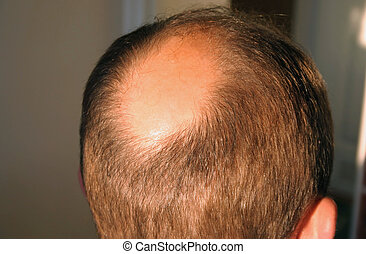 bald in the sun
