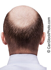 Bald man head - Human alopecia or hair loss - adult man bald...