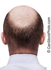 Human alopecia or hair loss - adult man bald head rear or back view