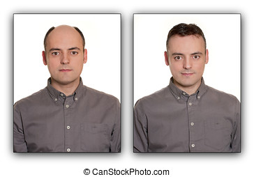 Bald man with a Wig. Before & After Concept.
