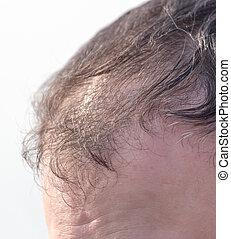 bald spots on the head