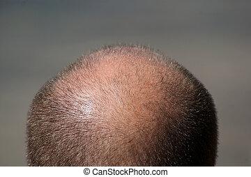 Balding Man's Head - Close up view of a balding man's head.