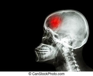 baleset, koponya, terület, gerinc, oldalsó nézet, cerebrovascular, ütés, röntgen, tiszta, nyaki, lejtő, film, bal