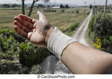 Bandage due to a burn