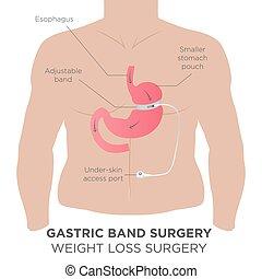 bande, gastrique, chirurgie, perte pondérale