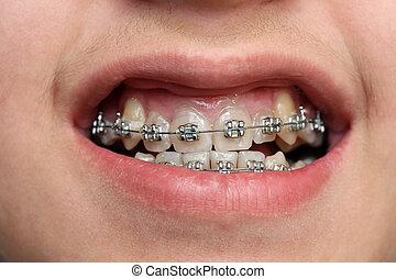 barn, tänder, med, hängslen