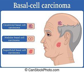 basal, cel, carcinoom, illustratie