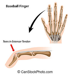Baseball finger, eps8