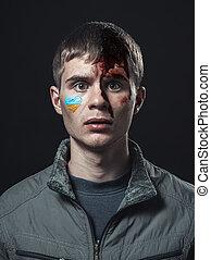 battuto, studente, ucraino