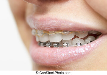 Beautiful womans smile with braces