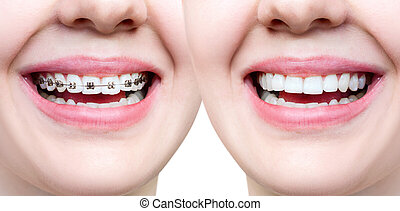 Beautiful smile with perfect teeth before and after braces. ...