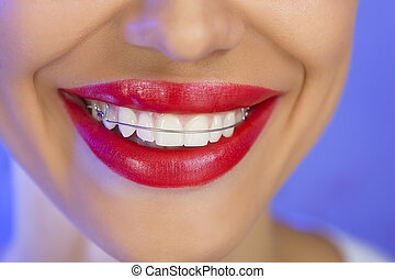 Beautiful smiling girl with retainer for teeth, close-up (on...