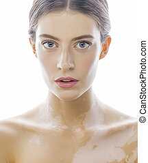 beautiful young brunette woman with vitiligo disease close up isolated on white positive