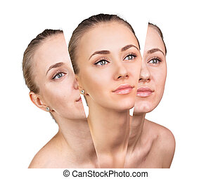 Beauty concept before and after contrast. - Woman's face, ...