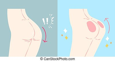 woman with butt implant