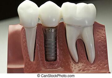 bedekken, dentaal, implantaat, model
