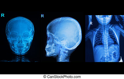 beeld, borst, verzameling, kinderen, tonen, röntgenstralen, schedel