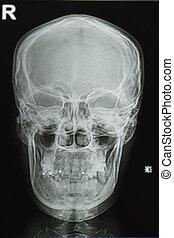 beeld, röntgenstralen, schedel