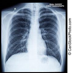 beeld, rontgen, menselijke borst