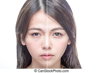 Asian woman's face, beauty concept, before and after