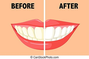 Before and after brushing teeth illustration