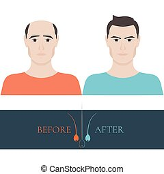 A man losing hair before and after hair treatment and hair transplantation. Male hair loss set. Hair care concept. Hair bulb logo. Hair loss clinic concept design. Isolated vector illustration.