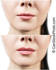 Before and after lip filler injections. Fillers. Lip...