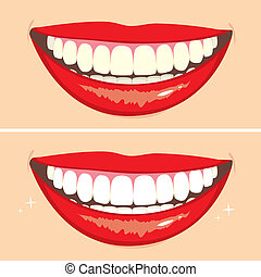 Before and After Smile - Illustration of two happy smiles...