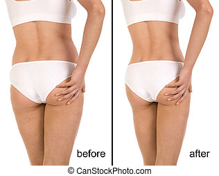 Before and after - Cellulite treatment program for women,...