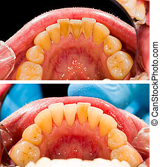 Human denture before plaque removal at the dentist's office.