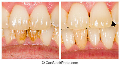 Before and after dental plaque removal treatment.