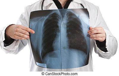 besitz, röntgenaufnahme, doktor