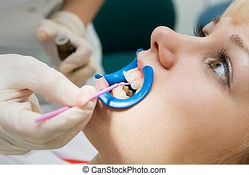 beskyddande, dental, procedur, tänder