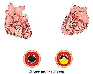 betegség, szív, koszorúszerű